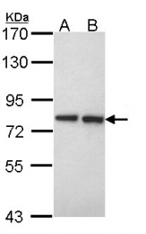 GTX101934 - Exostosin-2