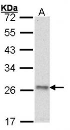 GTX101942 - ATP synthase subunit O
