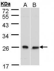 GTX101946 - DNAJB6