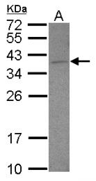 GTX101947 - DNAJB6