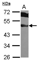 GTX101967 - EIF3F / EIF3S5