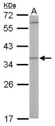 GTX101973 - Otubain-1 (OTUB1)