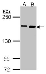 GTX102042 - DIAPH1