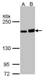 GTX102057 - DIAPH1