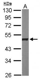 GTX102061 - hnRNP-H / HNRNPH1