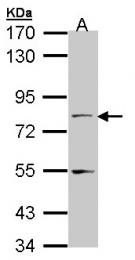 GTX102063 - NXF1