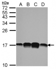 GTX102072 - Profilin-1 / PFN1