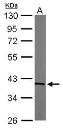 GTX102076 - Transaldolase (TALDO1)