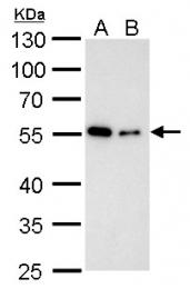 GTX102078 - alpha Tubulin / TUBA1B