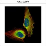 GTX102090 - RELA / NF-kB p65