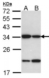 GTX102100 - Prohibitin-2