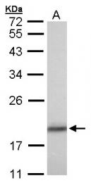 GTX102156 - Cofilin-1
