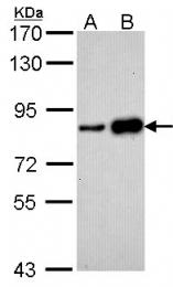 GTX102175 - CD3EAP