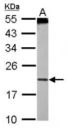 GTX102195 - PDCD6