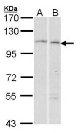 GTX102205 - Alpha-glucosidase 2  / GANAB