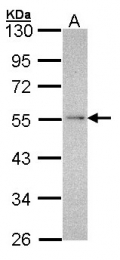 GTX102209 - NDUFV1