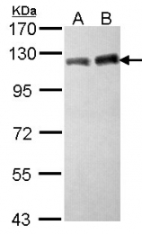 GTX102227 - TIF1-beta / TRIM28