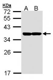 GTX102229 - XBP1 / TREB5