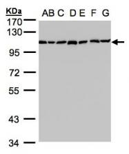 GTX102237 - Alpha-glucosidase 2  / GANAB