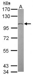 GTX102281 - TUBGCP2