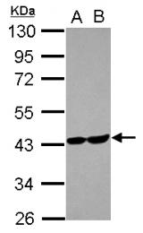 GTX102284 - Aldolase C / ALDOC