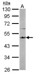 GTX102327 - EEF1A2