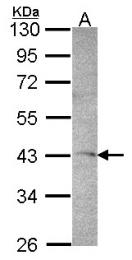 GTX102375 - STK17A / DRAK1