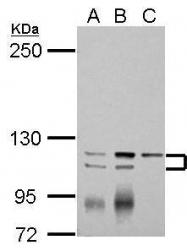 GTX102381 - ATP2A3 / SERCA3