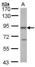 GTX102389 - CBLB / RNF56