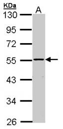 GTX102711 - MAP3K8 / TPL-2