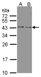 GTX102744 - 3-beta HSD2 / HSD3B2
