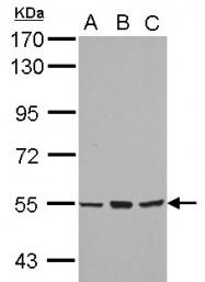 GTX102757 - CYP4B1
