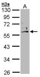 GTX102758 - Cytokeratin 2e