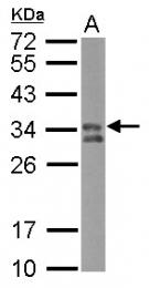 GTX102763 - HLA class II DP beta 1 / HLA-DPB1