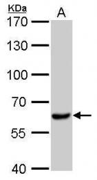 GTX102784 - TGFBR1 / ALK-5