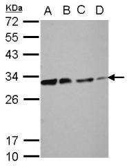 GTX102800 - Deoxycytidine kinase