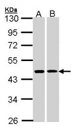 GTX102813 - 3-beta HSD2 / HSD3B2
