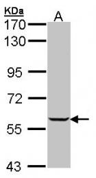GTX102814 - IMPDH1 / IMPD1