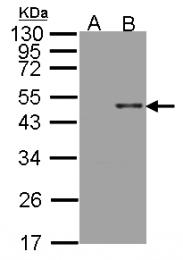 GTX102829 - Arylsulfatase B