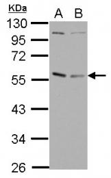 GTX102830 - GABPA