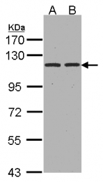 GTX102838 - CD249 / Glutamyl aminopeptidase