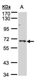 GTX102865 - PTPN6