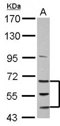 GTX102873 - Activin receptor type 1B (ACVR1B)