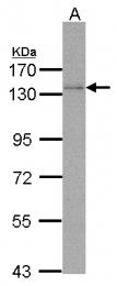 GTX102888 - POLD1