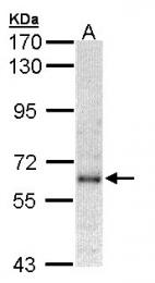 GTX102902 - IFNAR1