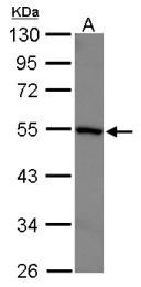 GTX102914 - RAR-gamma / RARG