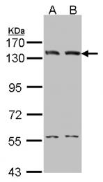 GTX102936 - DNA ligase 1