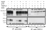 GTX10296 - TRPV1 / Vanilloid receptor 1