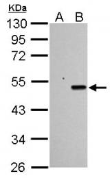 GTX102965 - TP53 / p53