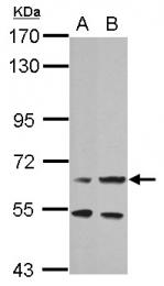 GTX102966 - Prolactin receptor